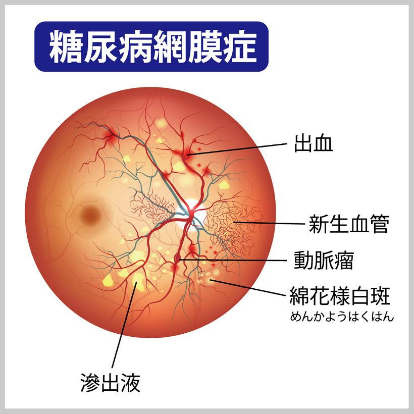 網膜 症 糖尿病