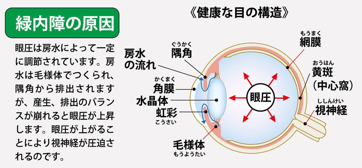 高い 眼 圧